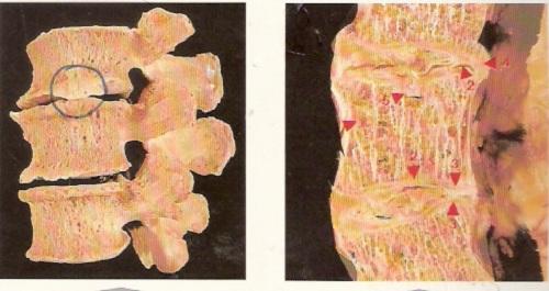 bệnh gai đôi cột sống