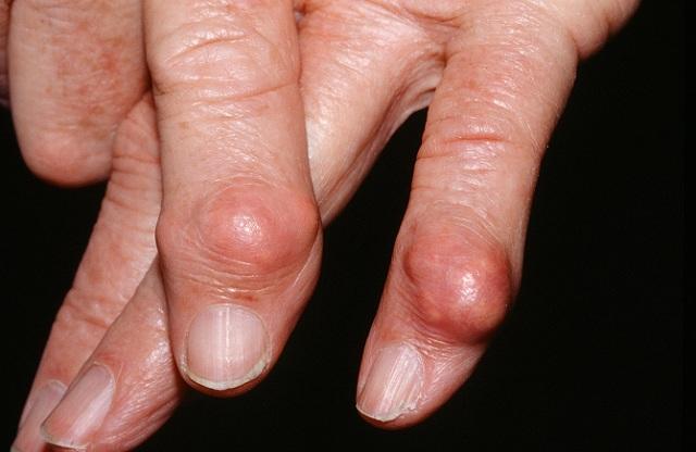 Ảnh hưởng của bệnh Gout tới xương khớp