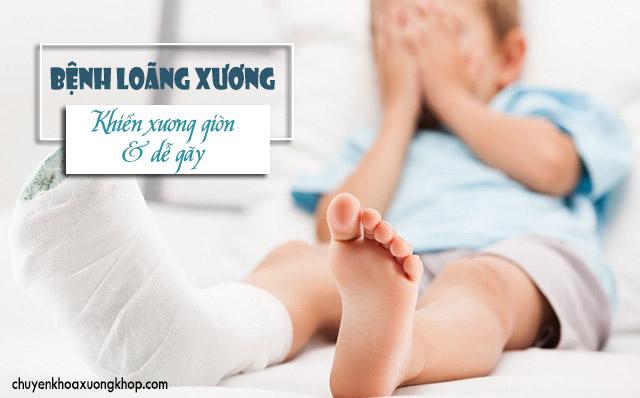 bệnh loãng xương ở trẻ