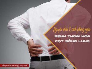 Nguyên nhân gây thoái hóa cột sống lưng