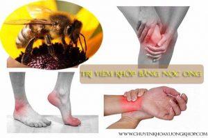 nọc ong trị viêm khớp