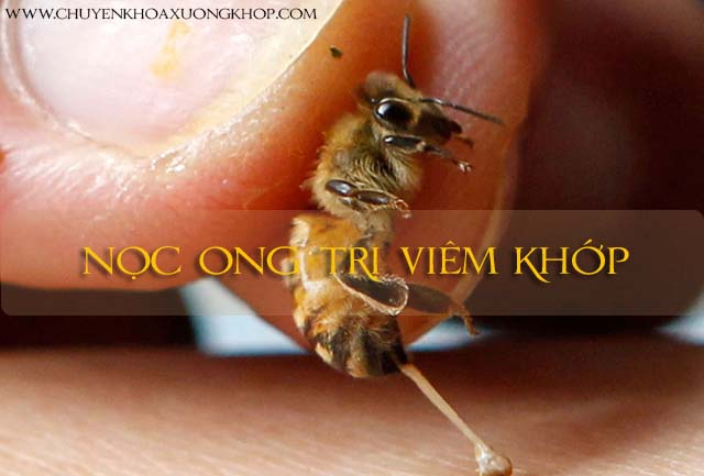 nọc ong trị viêm khớp bằng nhiều cách