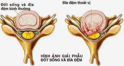 thoat-vi-dia-dem