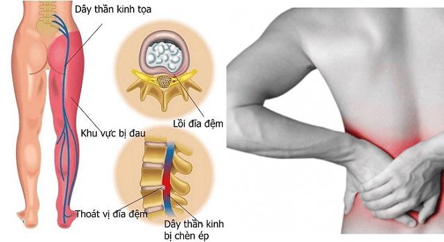 Nguyên nhân gây bệnh đau lưng dưới do đau thần kinh tọa
