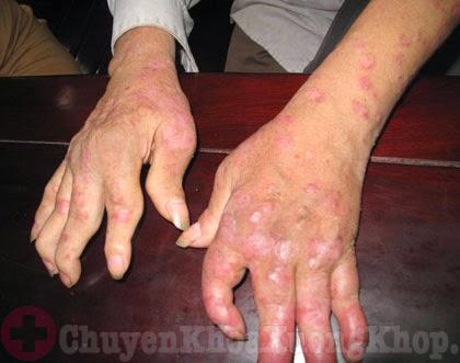 bệnh viêm khớp vẩy nến