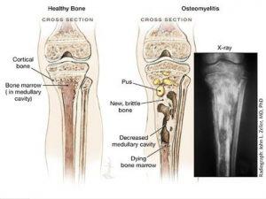 Bệnh viêm xương tùy xương