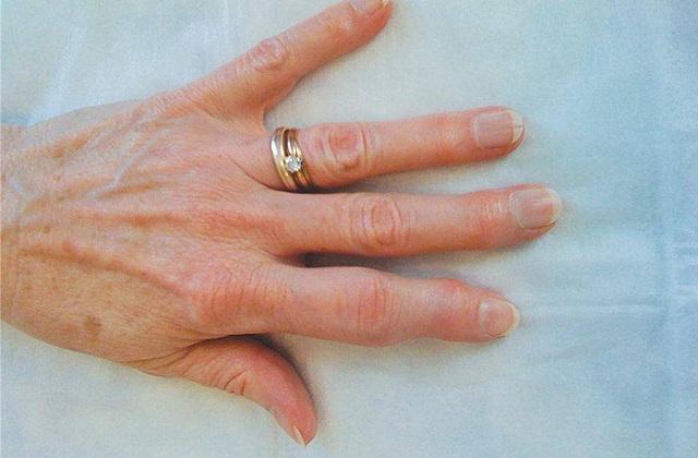 Sưng khớp ngón tay