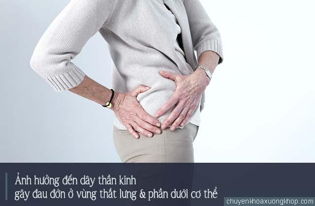 ảnh hưởng dây thần kinh là tác hại do bệnh thoát vị đĩa đệm cột sống thắt lưng gây ra