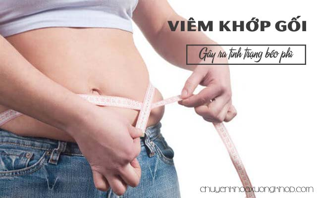 Viêm khướp gối gây béo phì