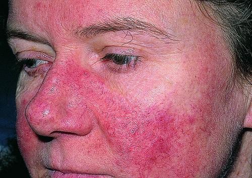 benh-lupus-ban-co-nguy-hiem-khong-2