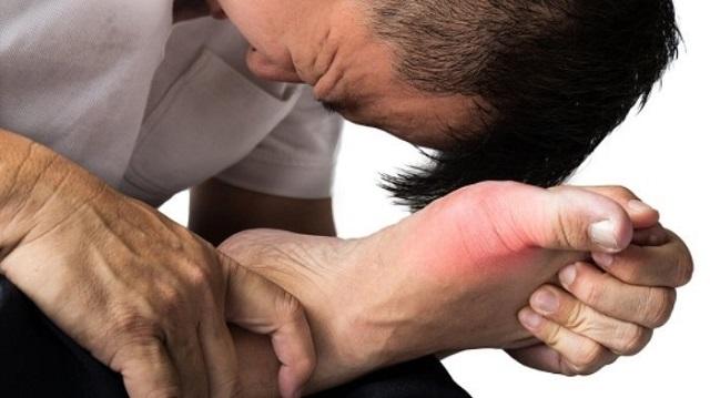 Biểu hiện lâm sàng của bệnh gout ở giai đoạn cấp tính