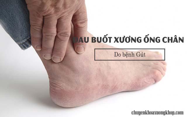 Đau buốt xương ống chân là biểu hiện của bệnh Gút