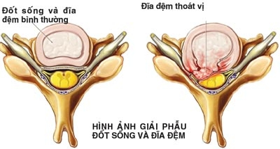 phau-thuat-benh-thoat-vi-dia-dem-cot-song-co-1