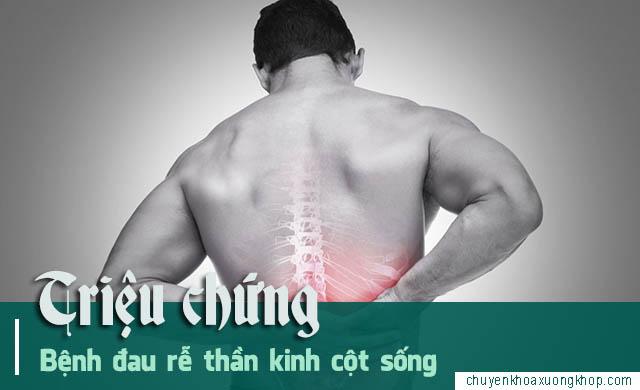Những triệu chứng đau rễ thần kinh cột sống