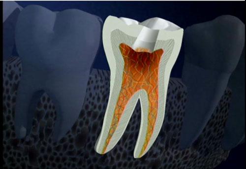 Thận trọng với chứng viêm tủy xương hàm do sâu răng