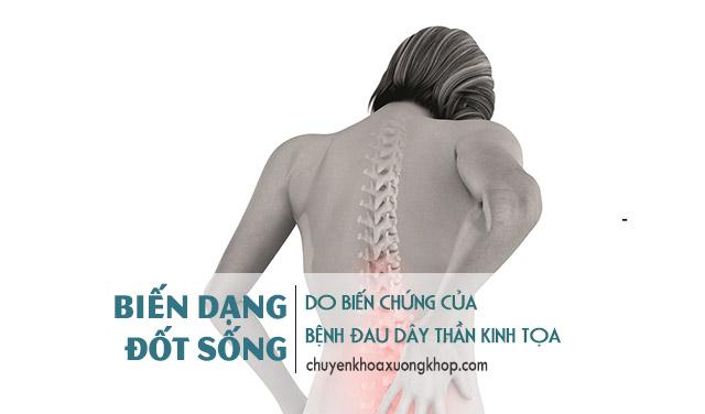 biến dạng cột sống là biến chứng của bệnh đau dây thần kinh tọa