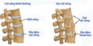Gai cột sống là bệnh lý xương khớp phổ biến