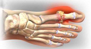 Các nguyên nhân gây bệnh gout mà bạn nên biết -1