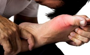 Các nguyên nhân gây bệnh gout mà bạn nên biết -2