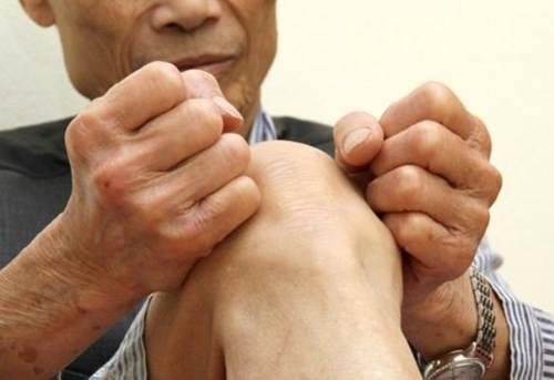 Chữa bệnh phong tê thấp hiệu quả với thuốc dân gian -1