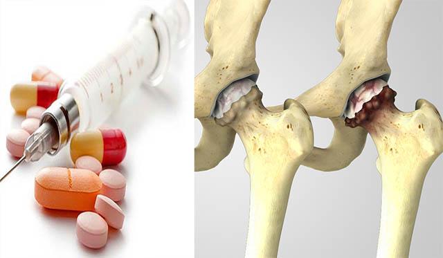 Thuốc Tây điều trị thoái hóa khớp háng