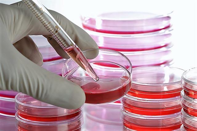 Cách chữa thoái hoá khớp háng bằng tế bào gốc