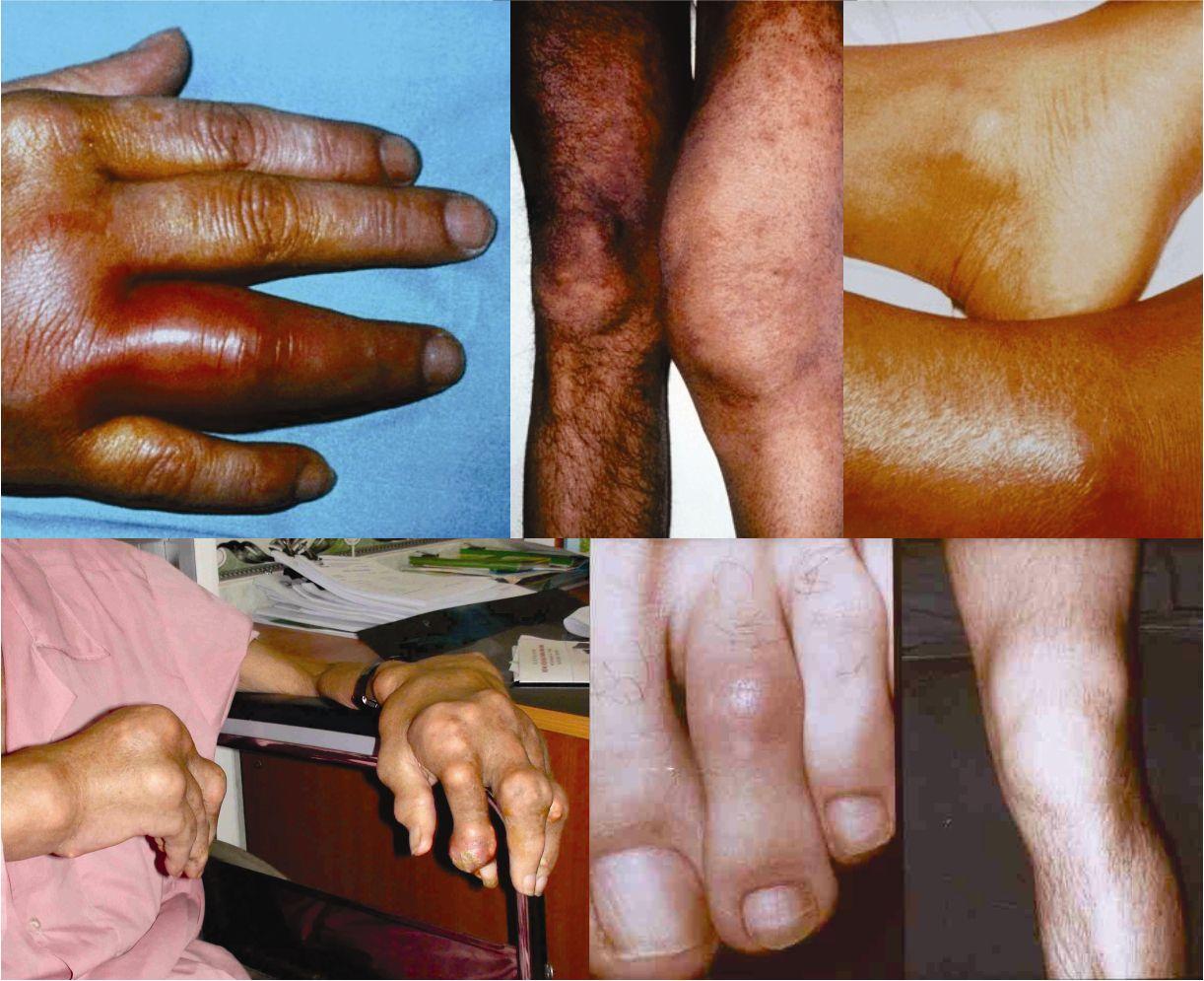 Nhận biết triệu chứng bệnh viêm đa khớp dạng thấp1