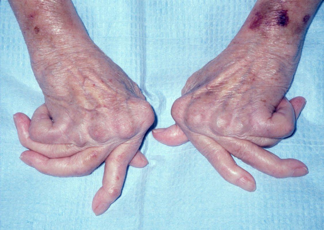 Nhận biết triệu chứng bệnh viêm đa khớp dạng thấp2