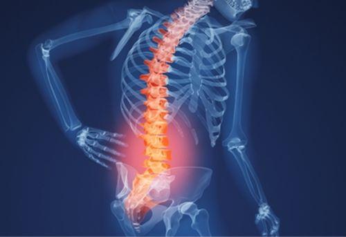 Nhận biết triệu chứng thoái hóa cột sống thắt lưng -2