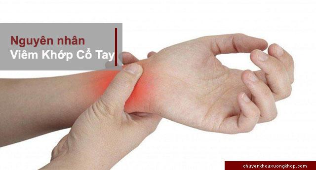 nguyên nhân gây viêm khớp cổ tay