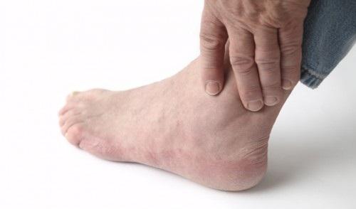 Điều trị viêm khớp cổ chân bằng thuốc gì nhanh khỏi ? -1