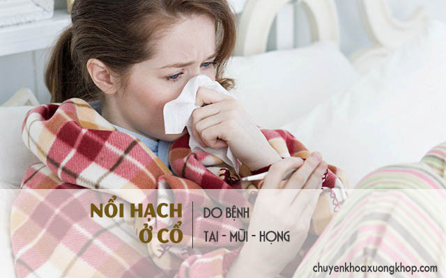Bệnh tai – mũi – họng gây nổi hạch ở cổ