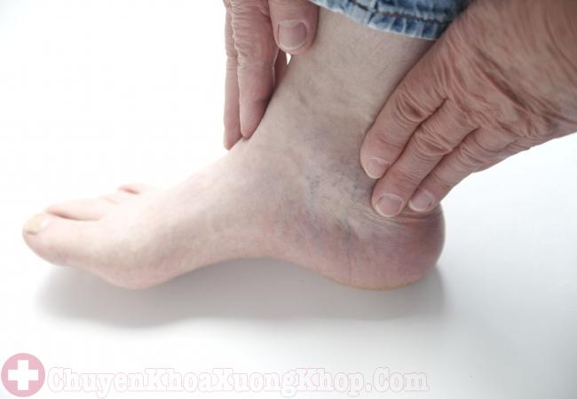 cách chữa trị thoái hóa cổ chân