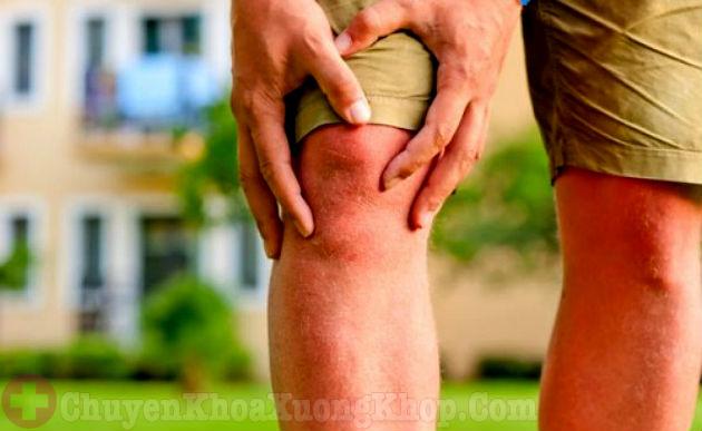 Khó khăn khi đi lại là dấu hiệu của bệnh viêm khớp gối