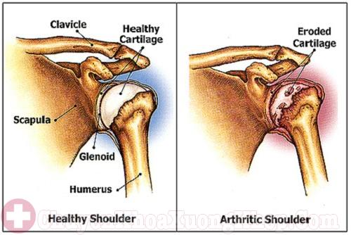 Viêm khớp vai gây nên đau buốt khớp vai
