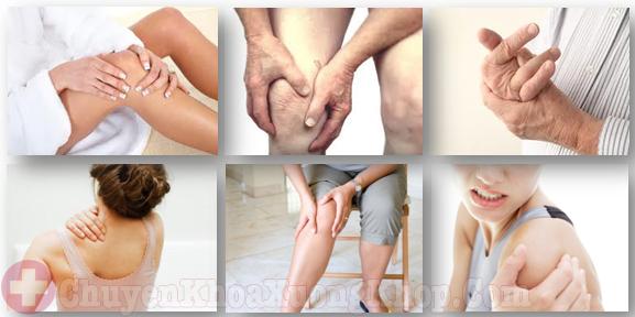 Triệu chứng đau mỏi, tê nhức khi mắc bệnh phong thấp