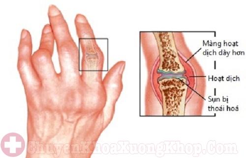 Triệu chứng tay xuất hiện u cục khi mắc bệnh phong thấp