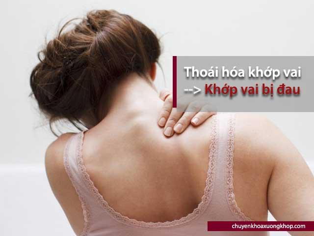 khớp vai bị đau là triệu chứng của thoái hóa khớp vai