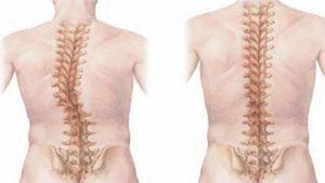 Thoái hóa cột sống thắt lưng gây biến dạng cột sống