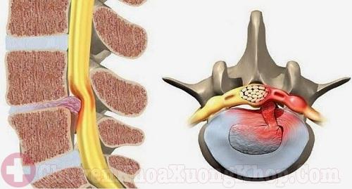 Thoái hóa cột sống thắt lưng gây thoát vị đĩa đệm