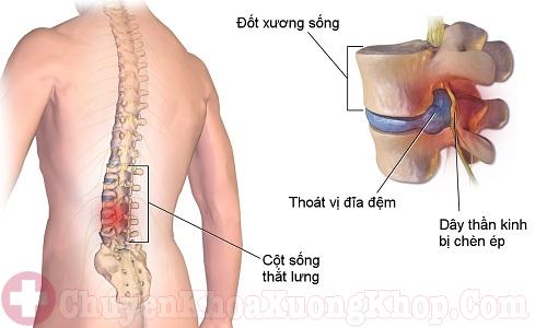 Chèn ép các dây thần kinh do thoái hóa cột sống thắt lưng