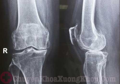 X - quang khớp gối