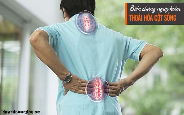 biến chứng của bệnh thoái hóa cột sống