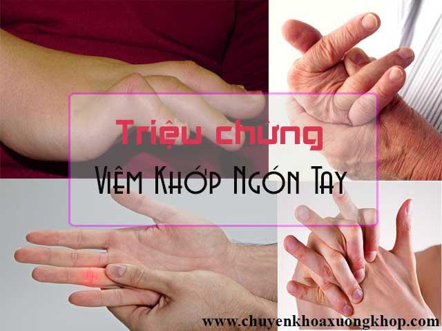 Triệu chứng bệnh viêm khớp ngón tay