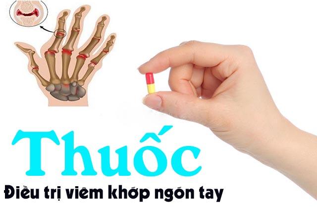 Thuốc điều trị viêm khớp ngón tay