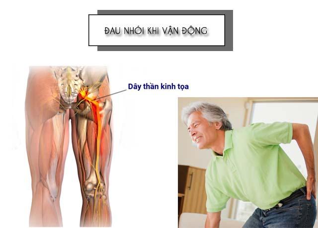 Đau khi vận động là triệu chứng của đau dây thần kinh tọa