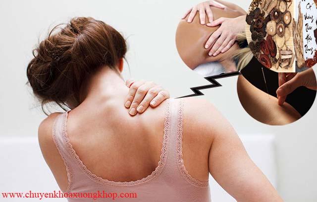 Điều trị đau mỏi vai gáy bằng y học cổ truyền