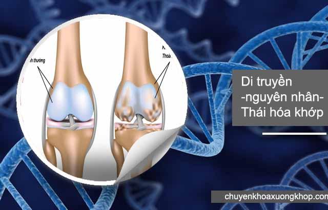 di truyền là nguyên nhân thoái hóa khớp gối