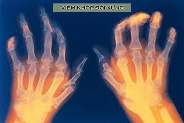 triệu chứng viêm khớp dạng thấp đối xứng