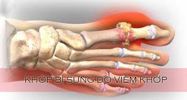 viêm khớp dạng thấp có triệu chứng sưng khớp